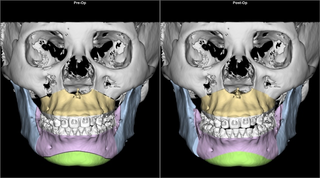 class II retruded chin gummy smile before after AP