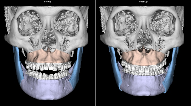 class III anterior open bite before after AP