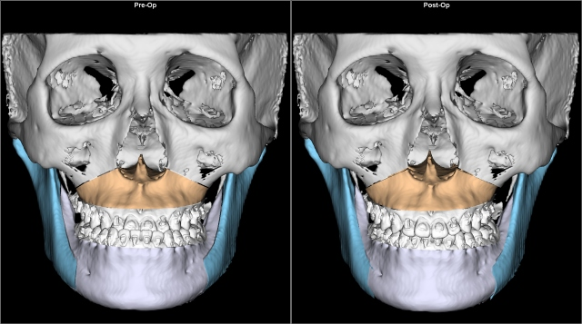 class III anterior reverse bite before after AP