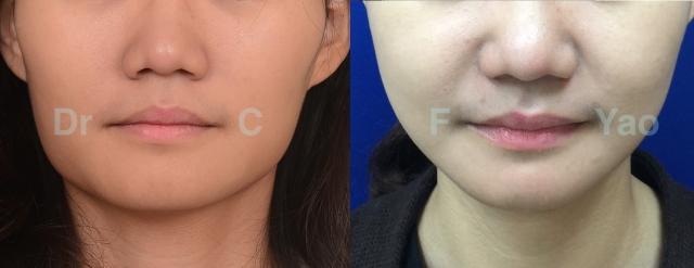 facial contouring 01 AP.001