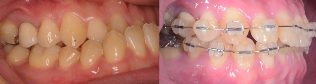 IntraOral02.001