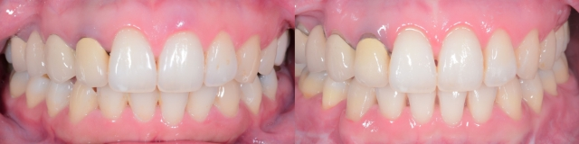 Intraoral Frontal.001